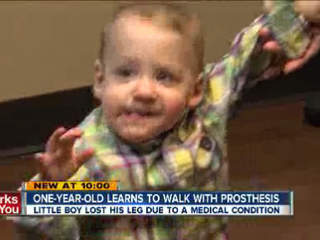 1-year-old learns to walk with prosthesis