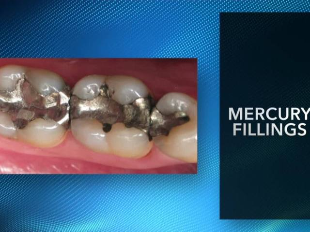 Mercury fillings can lead to serious health concerns