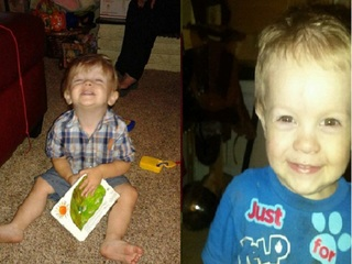 Toddler suffered burns on 98 percent of his body