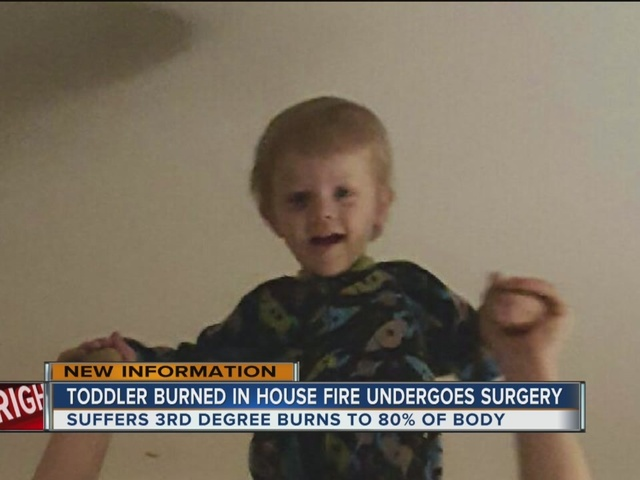 Toddler Burned In House Fire Undergoes Surgery