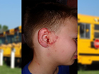 Nowata mother claims bullies damaged son's ear