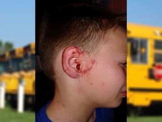 Nowata mother claims bullies damaged son's ear