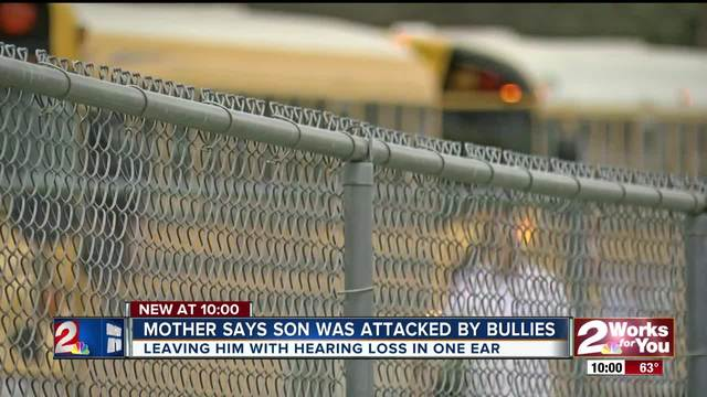 Mother says son was attacked by bullies