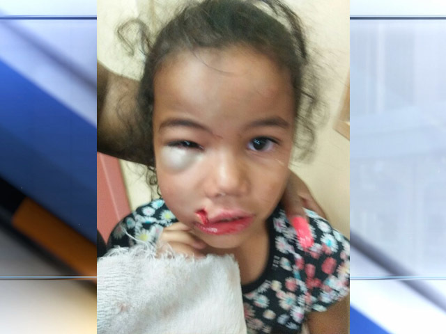 Girl severely injured at Muskogee daycare